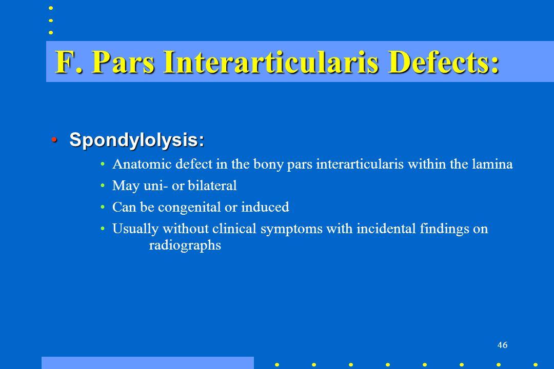 46 F. Pars Interarticularis Defects: Spondylolysis:Spondylolysis: Anatomic defect in the bony pars interarticularis within the lamina May uni- or bila