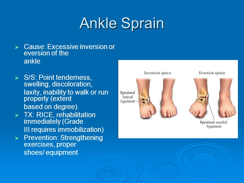 Ankle Sprain   Cause: Excessive inversion or eversion of the ankle   S/S: Point tenderness, swelling, discoloration, laxity, inability to walk or