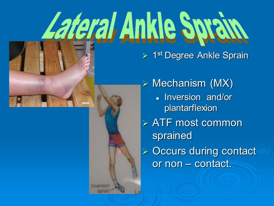  1 st Degree Ankle Sprain  Mechanism (MX) Inversion and/or plantarflexion  ATF most common sprained  Occurs during contact or non – contact.