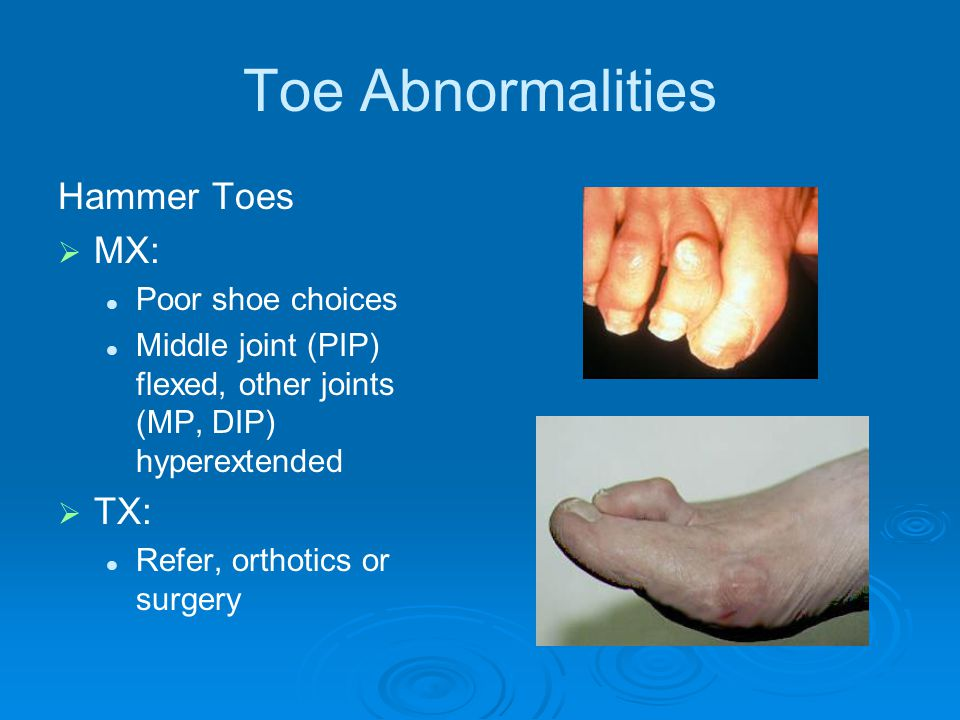 Toe Abnormalities Hammer Toes   MX: Poor shoe choices Middle joint (PIP) flexed, other joints (MP, DIP) hyperextended   TX: Refer, orthotics or su