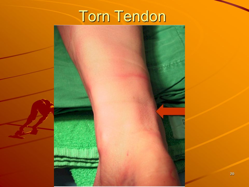 19 Common Injuries Signs/symptoms –swelling and deformity –pop or snap –pain in lower leg –loss of function, especially in plantar flexion First Aid:
