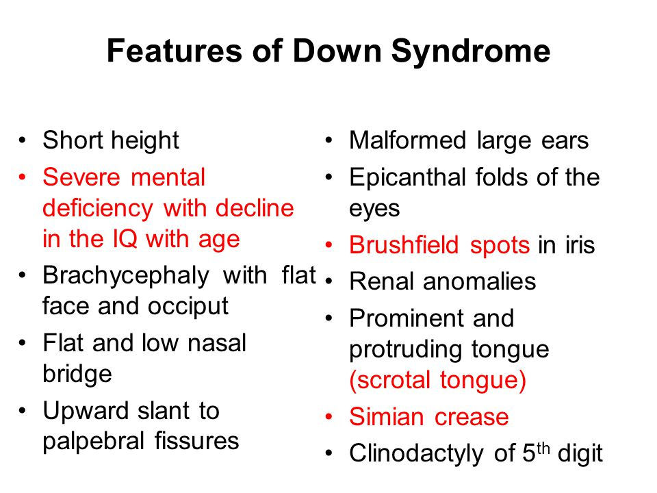 Features of Down Syndrome Short height Severe mental deficiency with decline in the IQ with age Brachycephaly with flat face and occiput Flat and low