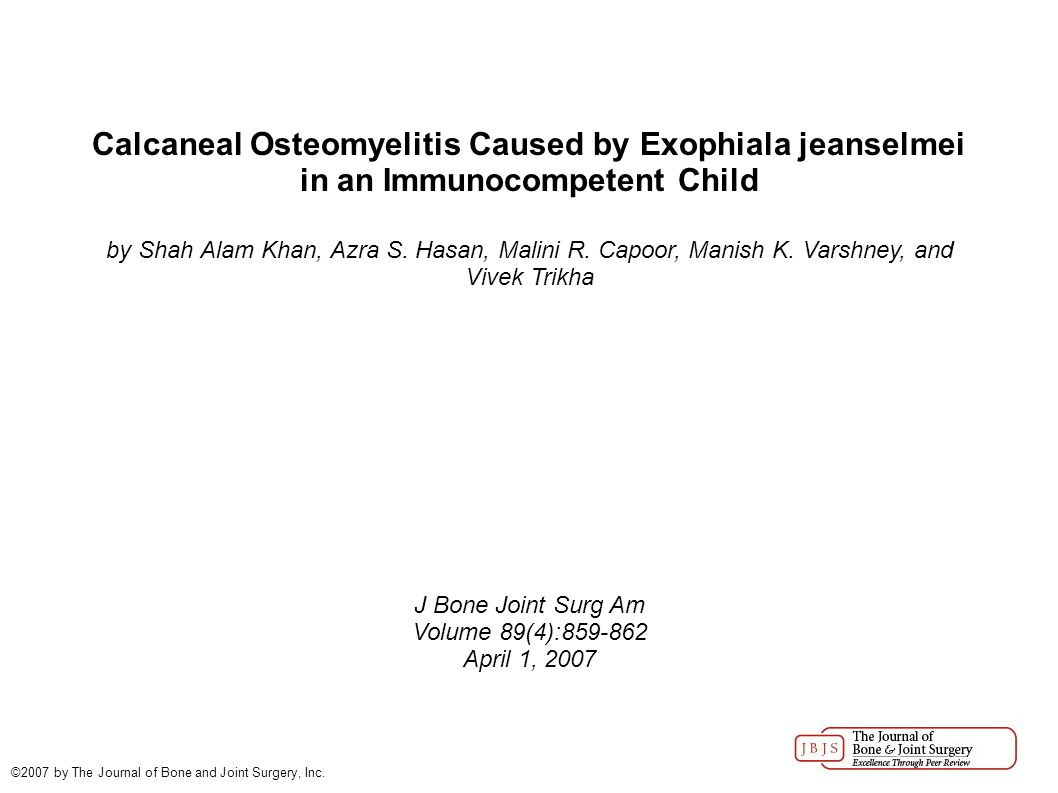 Calcaneal Osteomyelitis Caused by Exophiala jeanselmei in an Immunocompetent Child by Shah Alam Khan, Azra S. Hasan, Malini R. Capoor, Manish K. Varsh
