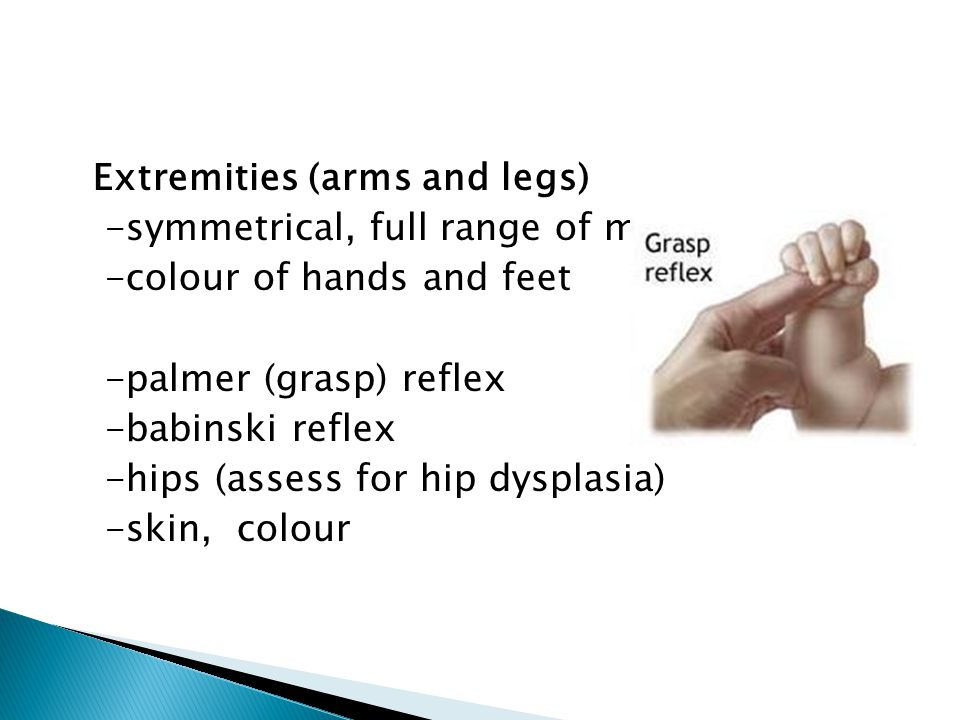 Extremities (arms and legs) -symmetrical, full range of motion -colour of hands and feet -palmer (grasp) reflex -babinski reflex -hips (assess for hip