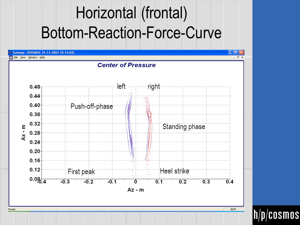 Horizontal (frontal) Bottom-Reaction-Force-Curve First peak Standing phase rightleft Heel strike Push-off-phase