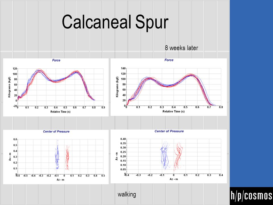 Calcaneal Spur walking 8 weeks later