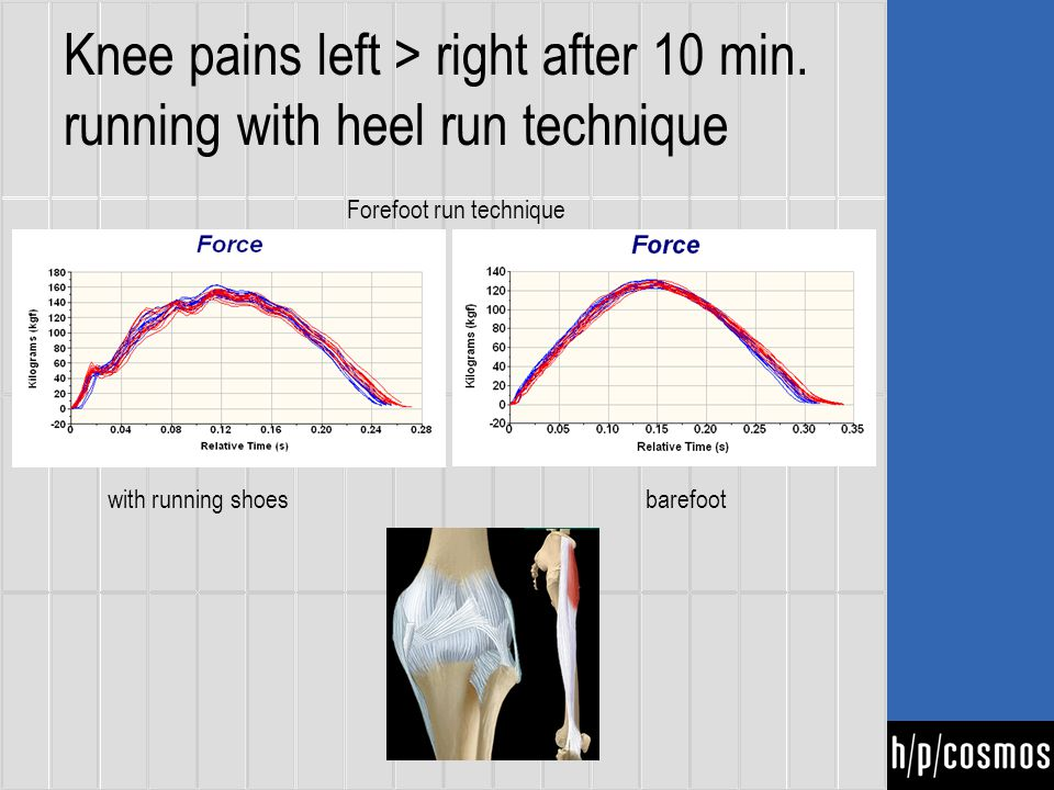 Knee pains left > right after 10 min.