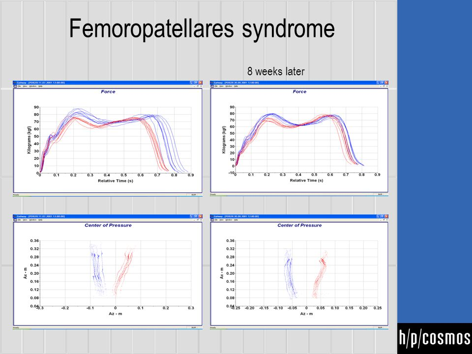 Femoropatellares syndrome 8 weeks later