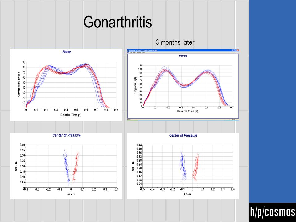 Gonarthritis 3 months later