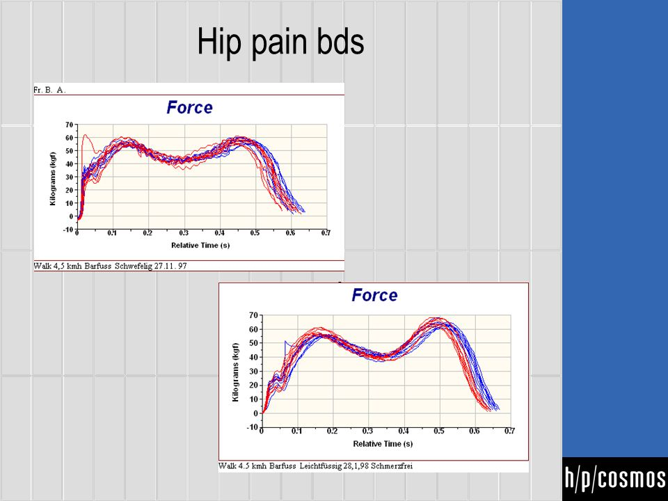 Hip pain bds