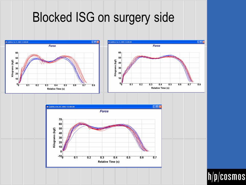 Blocked ISG on surgery side