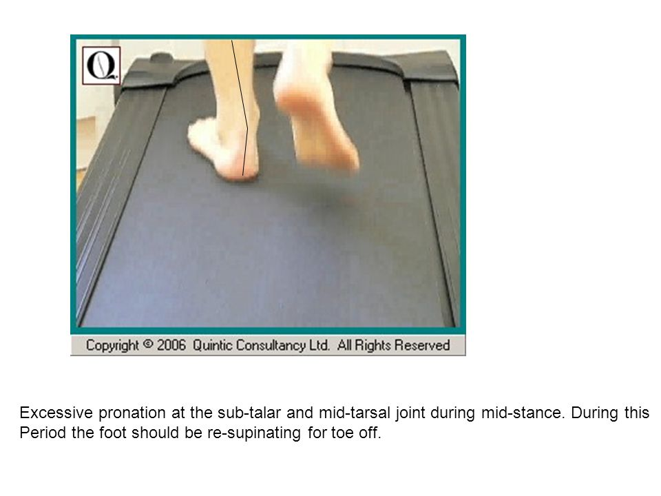 Excessive pronation at the sub-talar and mid-tarsal joint during mid-stance. During this Period the foot should be re-supinating for toe off.