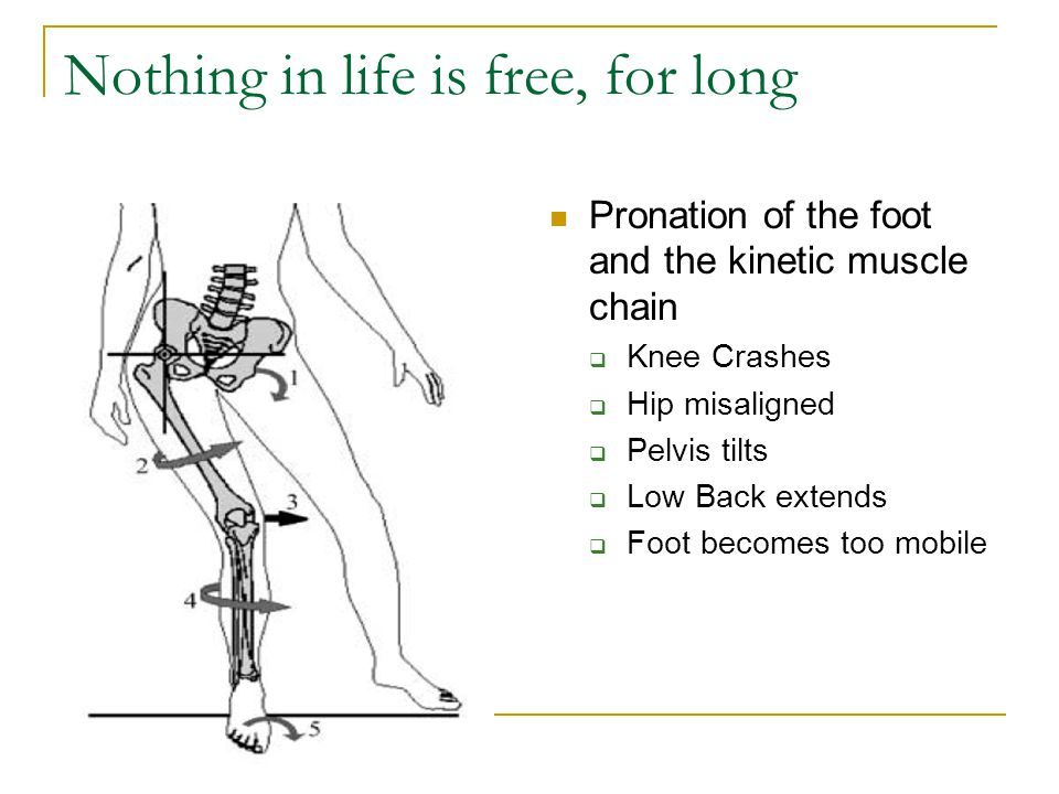 Nothing in life is free, for long Pronation of the foot and the kinetic muscle chain  Knee Crashes  Hip misaligned  Pelvis tilts  Low Back extends