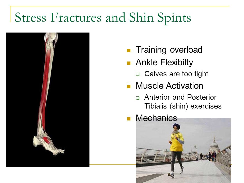 Stress Fractures and Shin Spints Training overload Ankle Flexibilty  Calves are too tight Muscle Activation  Anterior and Posterior Tibialis (shin)