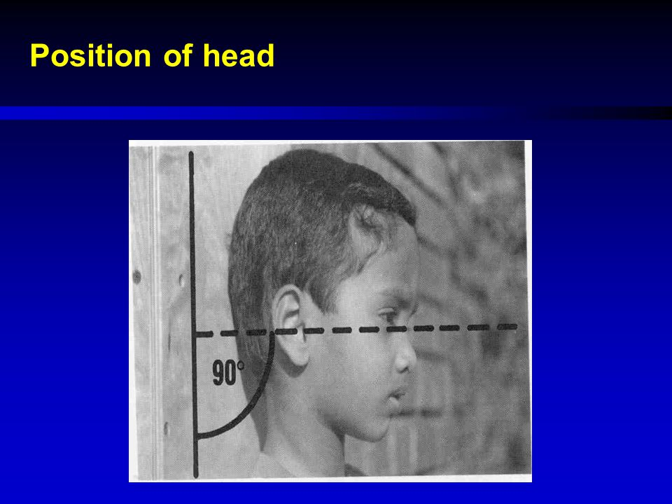 Position of head