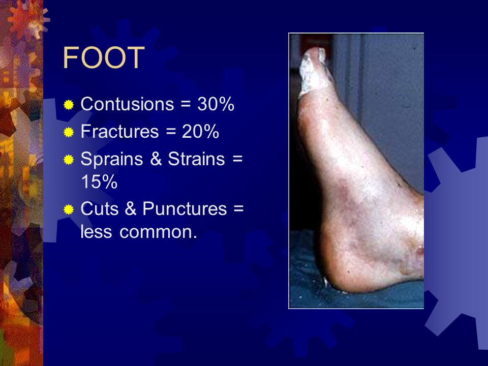 FOOT  Contusions = 30%  Fractures = 20%  Sprains & Strains = 15%  Cuts & Punctures = less common.