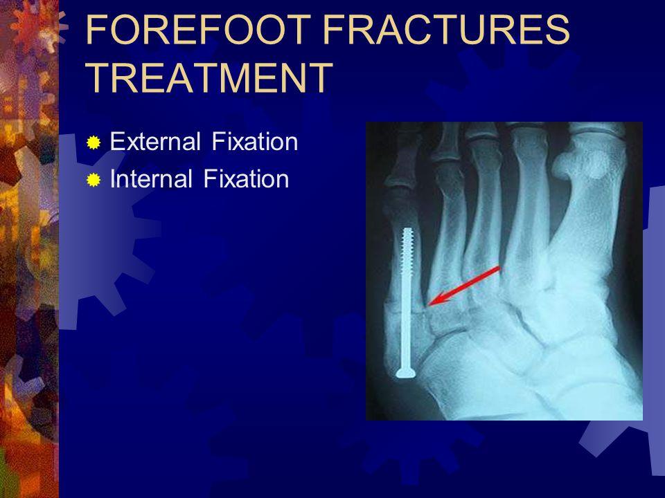 FOREFOOT FRACTURES TREATMENT  External Fixation  Internal Fixation