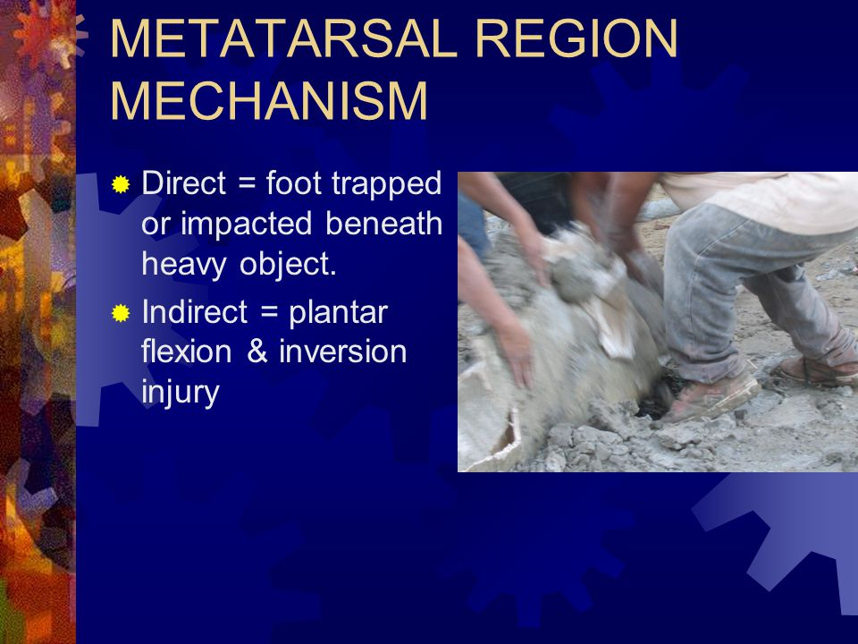 METATARSAL REGION MECHANISM  Direct = foot trapped or impacted beneath heavy object.  Indirect = plantar flexion & inversion injury
