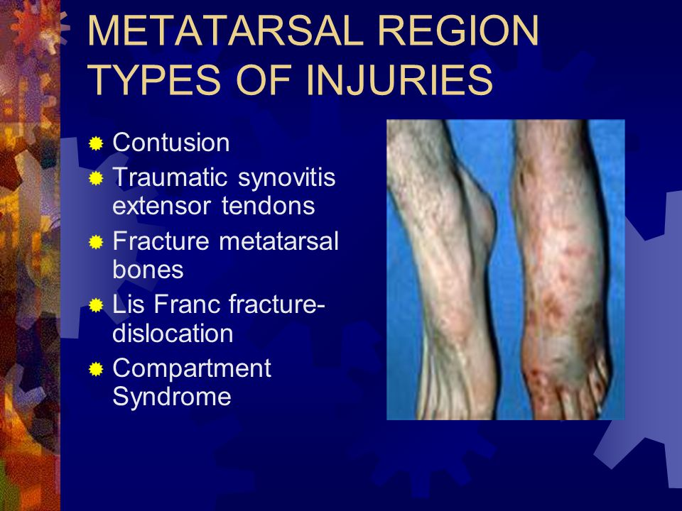 METATARSAL REGION TYPES OF INJURIES  Contusion  Traumatic synovitis extensor tendons  Fracture metatarsal bones  Lis Franc fracture- dislocation 