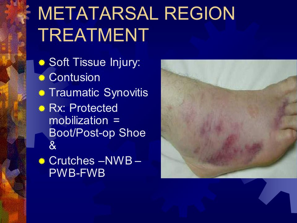 METATARSAL REGION TREATMENT  Soft Tissue Injury:  Contusion  Traumatic Synovitis  Rx: Protected mobilization = Boot/Post-op Shoe &  Crutches –NWB