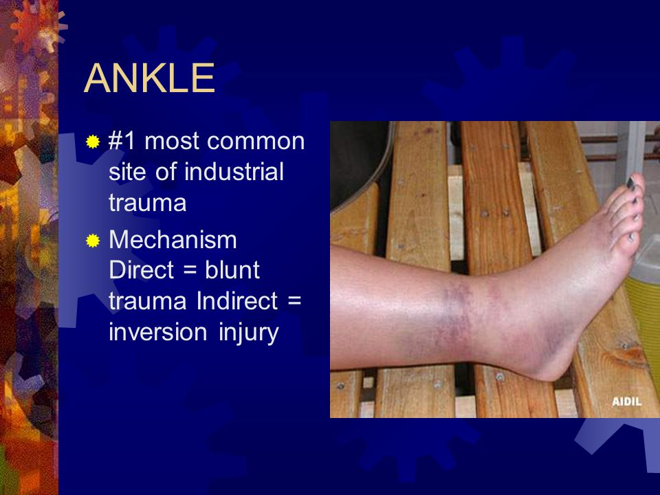 ANKLE  #1 most common site of industrial trauma  Mechanism Direct = blunt trauma Indirect = inversion injury
