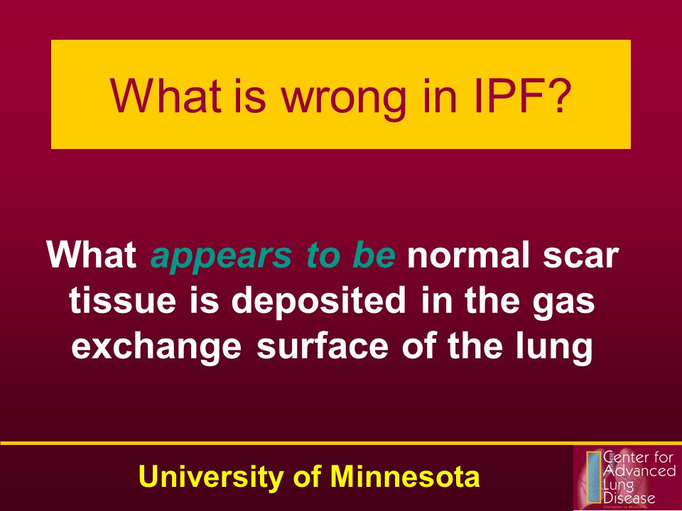 What is wrong in IPF.