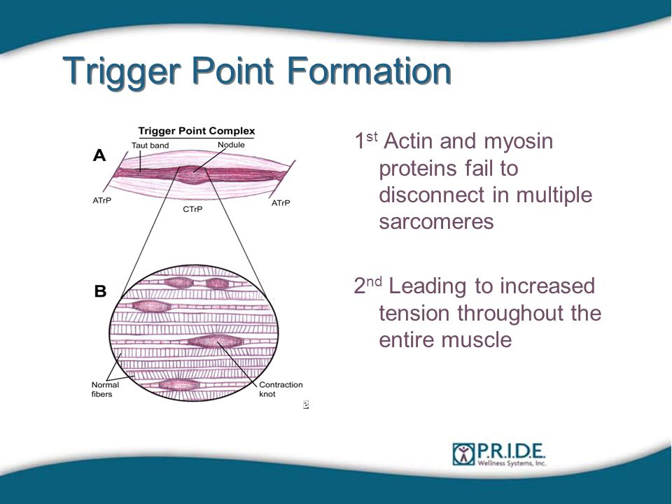 Trigger Point Formation 1 st Actin and myosin proteins fail to disconnect in multiple sarcomeres 2 nd Leading to increased tension throughout the entire muscle