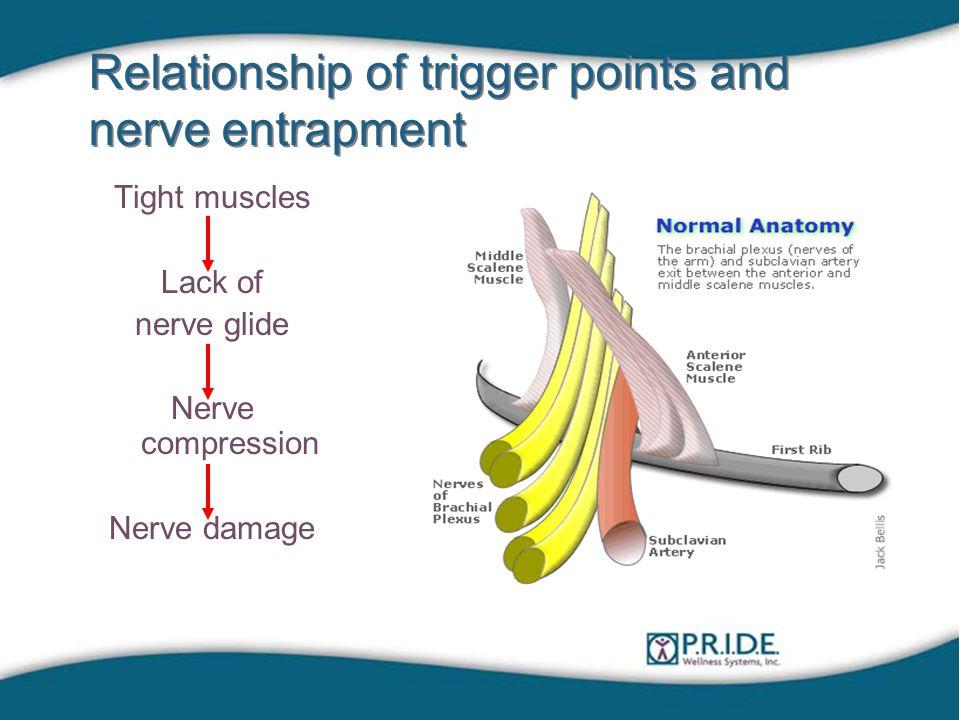 Relationship of trigger points and nerve entrapment Tight muscles Lack of nerve glide Nerve compression Nerve damage