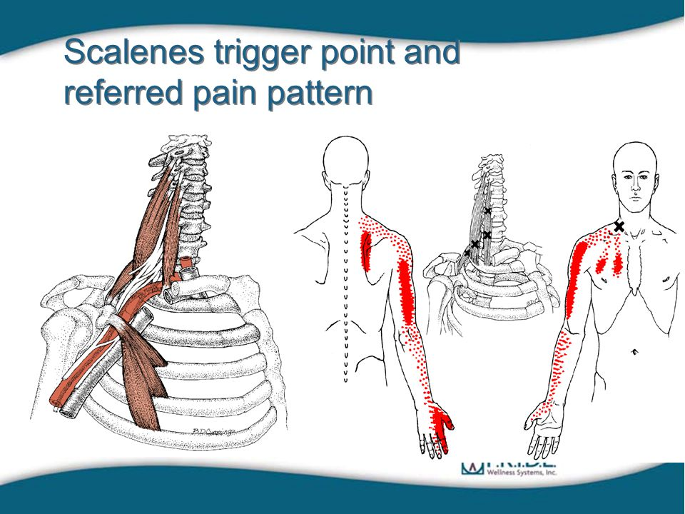 Scalenes trigger point and referred pain pattern