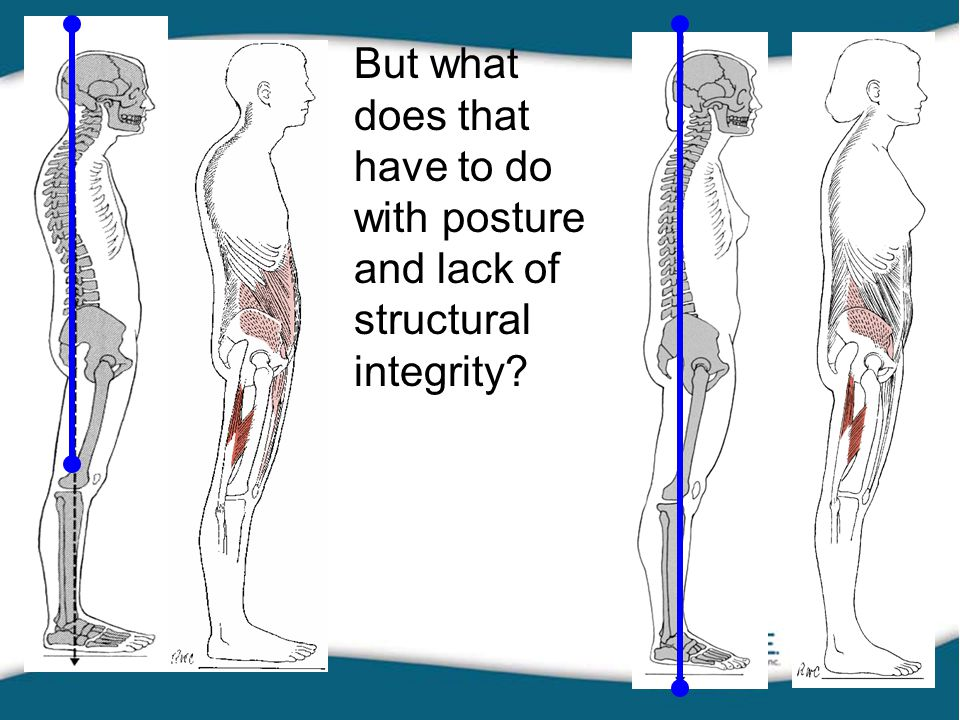 But what does that have to do with posture and lack of structural integrity?
