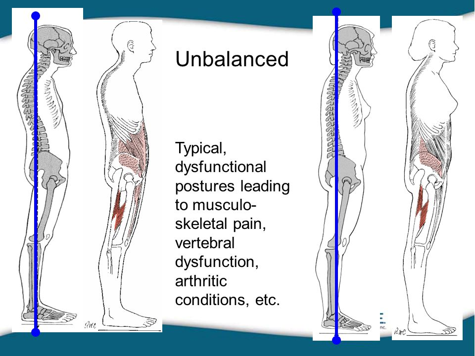 Unbalanced Typical, dysfunctional postures leading to musculo- skeletal pain, vertebral dysfunction, arthritic conditions, etc.