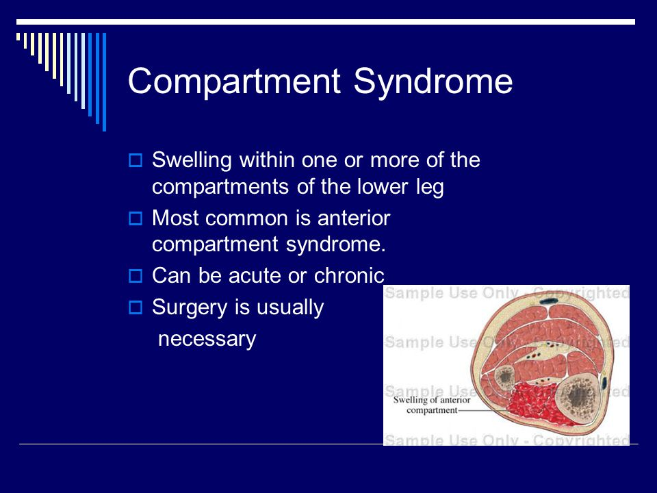 Compartment Syndrome  Swelling within one or more of the compartments of the lower leg  Most common is anterior compartment syndrome.  Can be acute