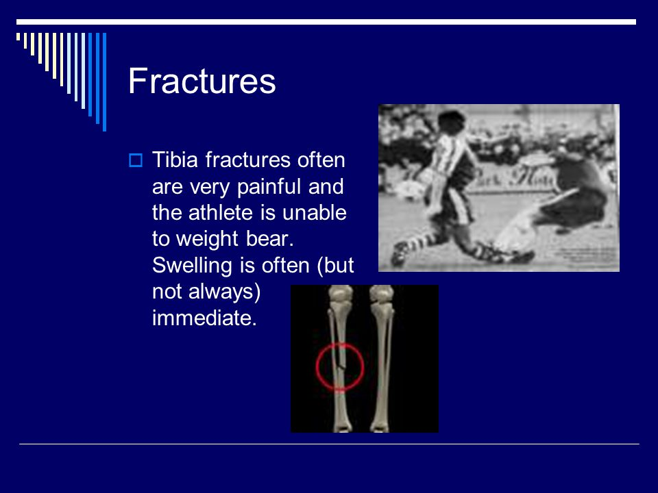 Fractures  Tibia fractures often are very painful and the athlete is unable to weight bear. Swelling is often (but not always) immediate.