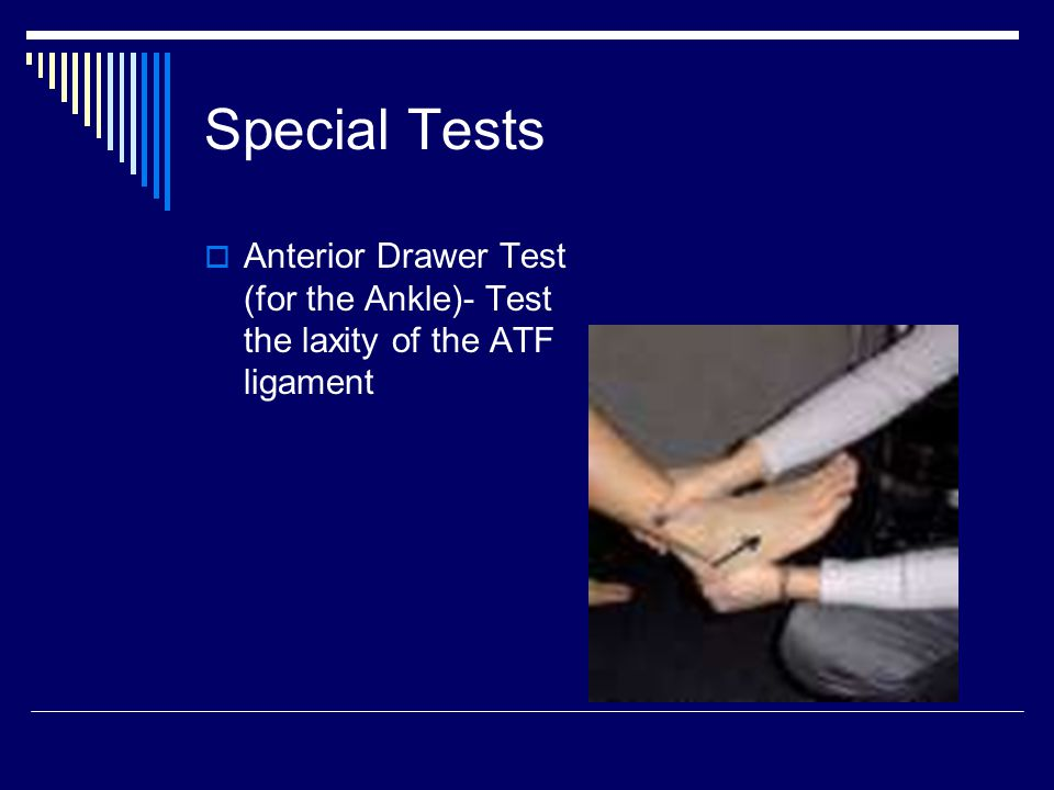 Special Tests  Anterior Drawer Test (for the Ankle)- Test the laxity of the ATF ligament
