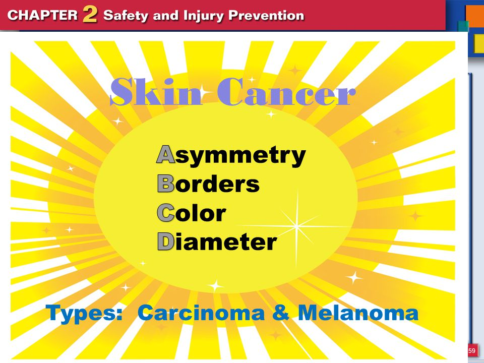 59 Skin Cancer Types: Carcinoma & Melanoma