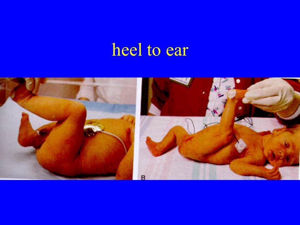 heel to ear