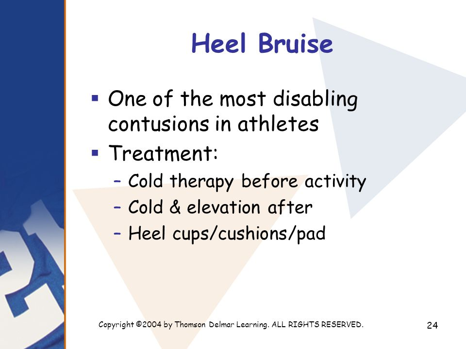 Copyright ©2004 by Thomson Delmar Learning. ALL RIGHTS RESERVED. 24 Heel Bruise  One of the most disabling contusions in athletes  Treatment: –Cold