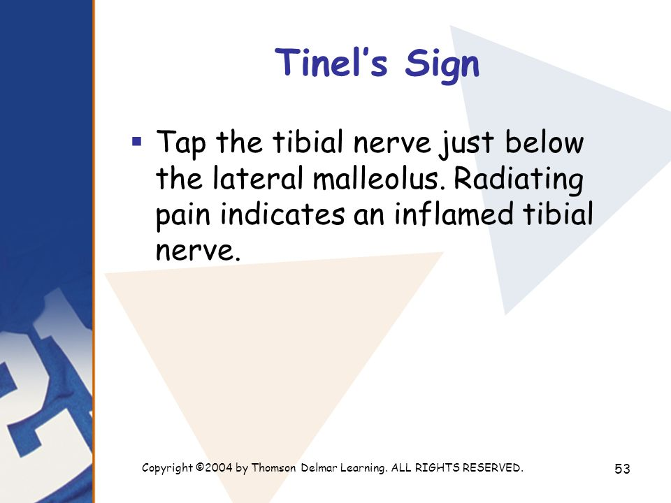 Copyright ©2004 by Thomson Delmar Learning. ALL RIGHTS RESERVED. 53 Tinel's Sign  Tap the tibial nerve just below the lateral malleolus. Radiating pa