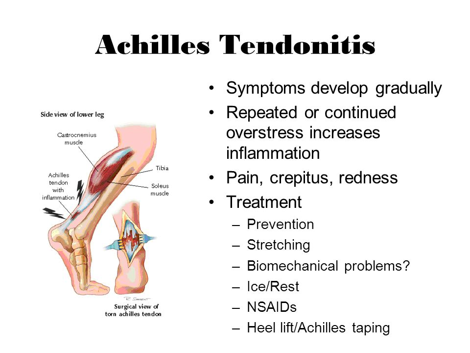 Achilles Tendonitis Symptoms develop gradually Repeated or continued overstress increases inflammation Pain, crepitus, redness Treatment –Prevention –