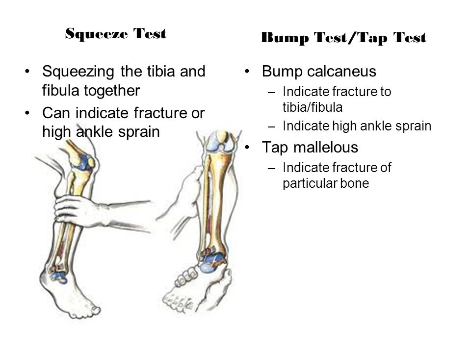 Squeeze Test Squeezing the tibia and fibula together Can indicate fracture or high ankle sprain Bump Test/Tap Test Bump calcaneus –Indicate fracture t