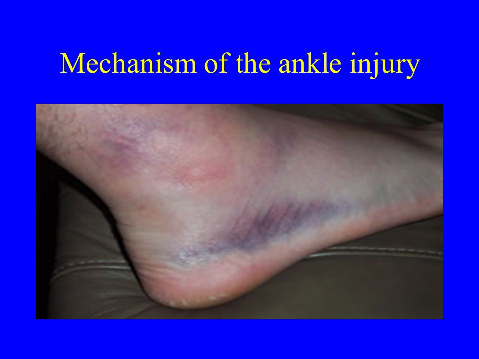 Mechanism of the ankle injury