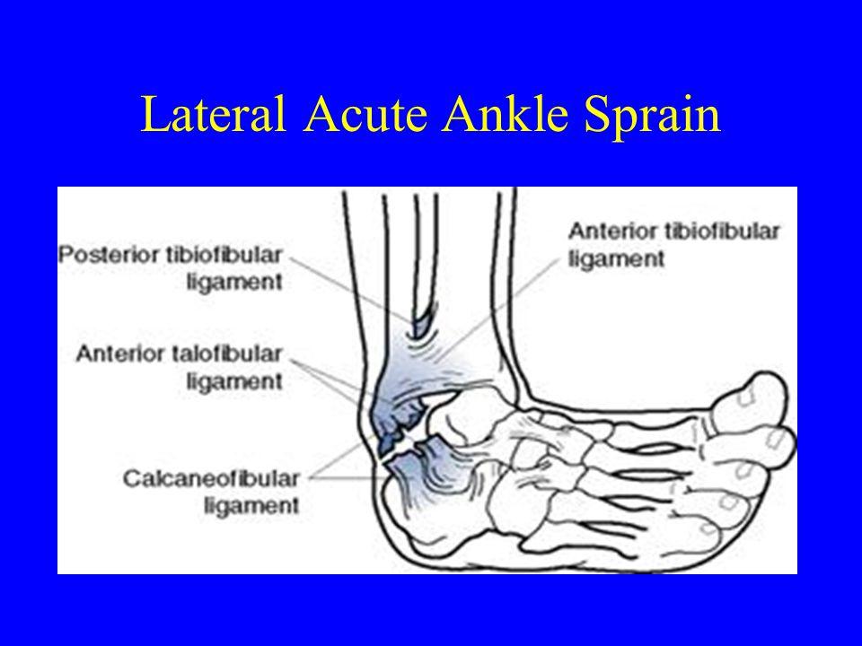 Lateral Acute Ankle Sprain