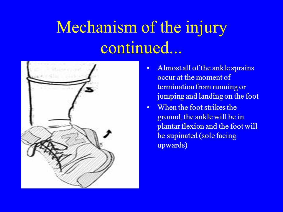 Mechanism of the injury continued... Almost all of the ankle sprains occur at the moment of termination from running or jumping and landing on the foo
