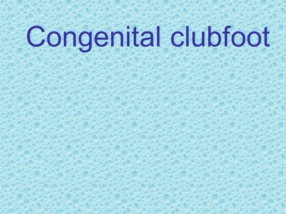 CONGENITAL CLUBFOOT NONOPERATIVE TREATMENT 1.Serial casting 2.