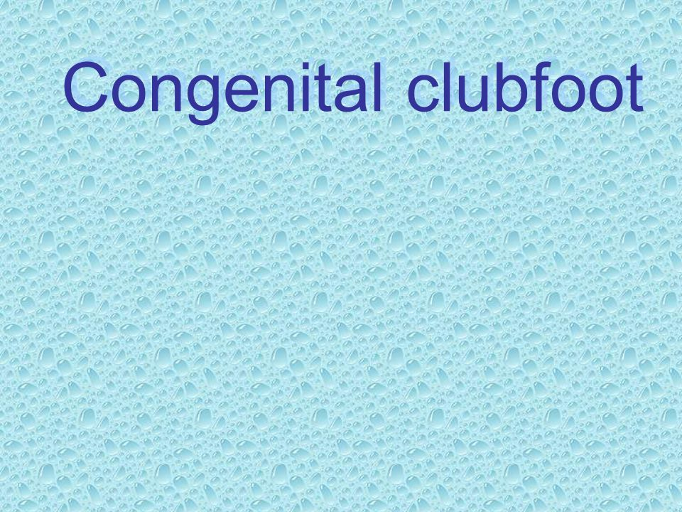 Congenital clubfoot
