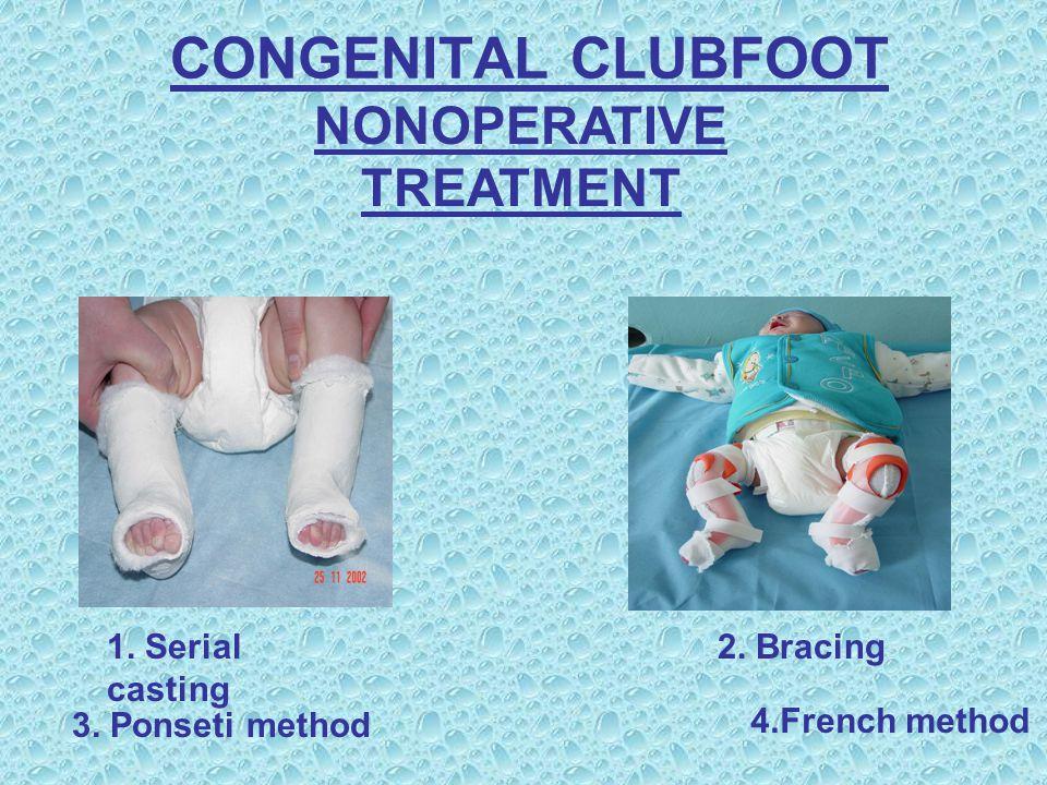 CONGENITAL CLUBFOOT NONOPERATIVE TREATMENT 1. Serial casting 2.