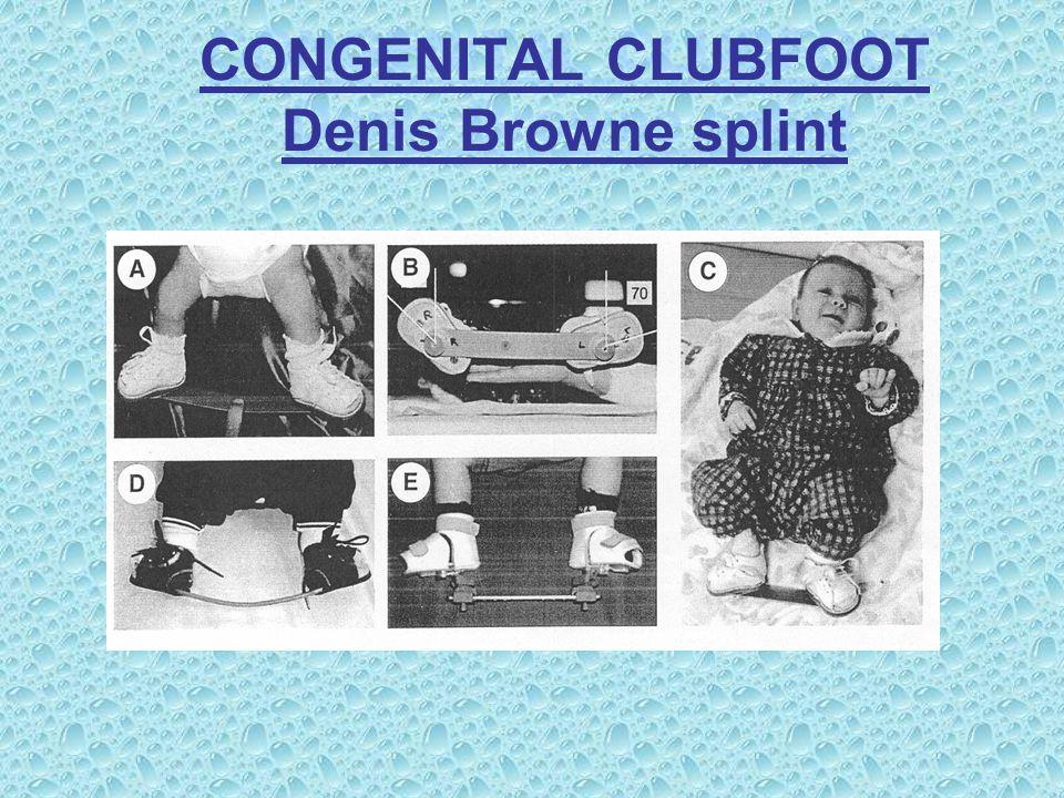 CONGENITAL CLUBFOOT Disadvantages Denis Browne splint's 1.It doesn't provides enough external rotation 2.