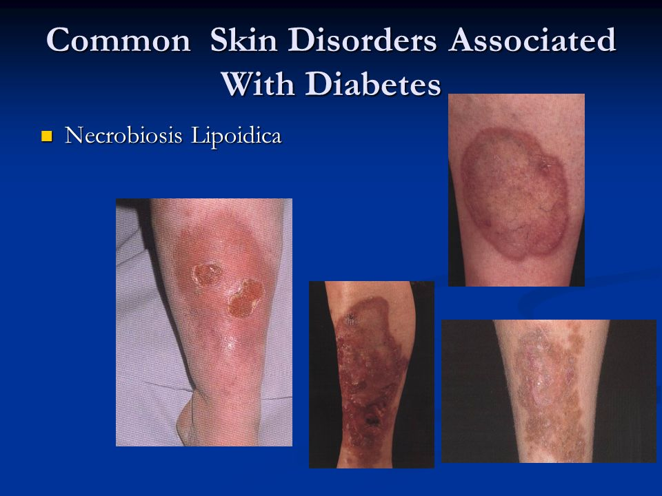 Common Skin Disorders Associated With Diabetes Necrobiosis Lipoidica Necrobiosis Lipoidica