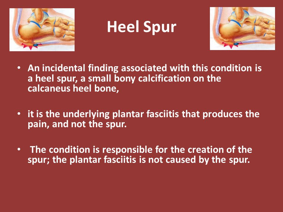Heel Spur An incidental finding associated with this condition is a heel spur, a small bony calcification on the calcaneus heel bone, it is the underl