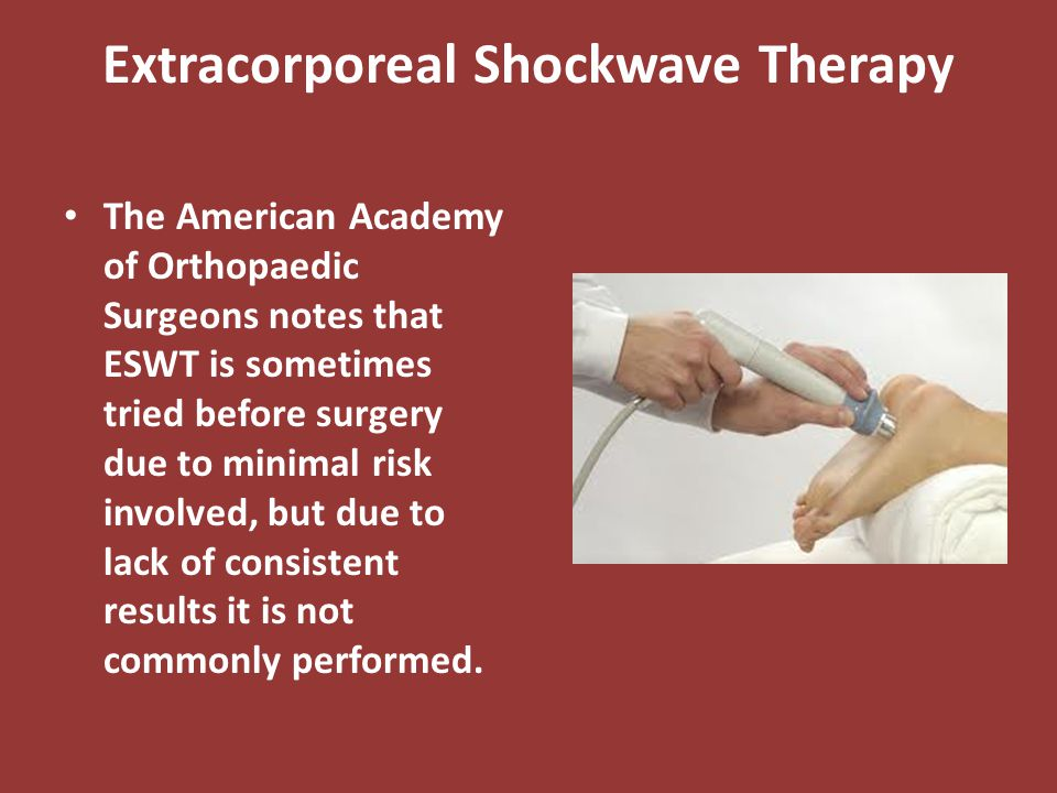 Extracorporeal Shockwave Therapy The American Academy of Orthopaedic Surgeons notes that ESWT is sometimes tried before surgery due to minimal risk in